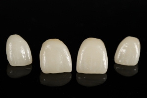 many dental crowns